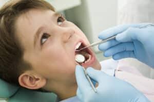 cavities kids