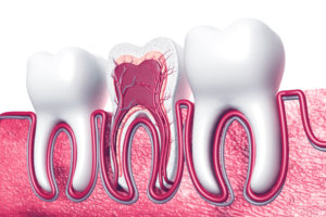 Pediatric Root Canal
